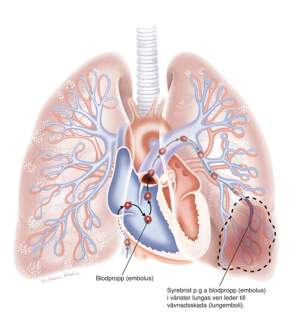symptom propp i lungan